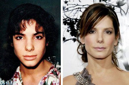 Sandra Bullock Nose Job Surgery Before And After