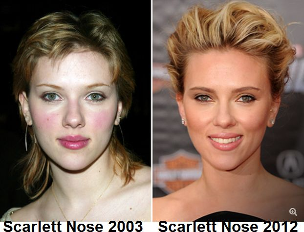 Scarlett Johansson Nose Job Before and After Pictures