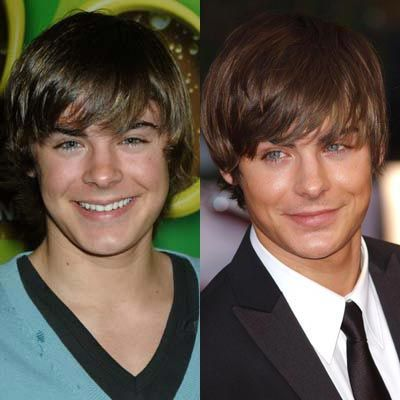 Young Zac Efron's Nose Job