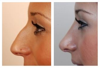 arched nose job before and after