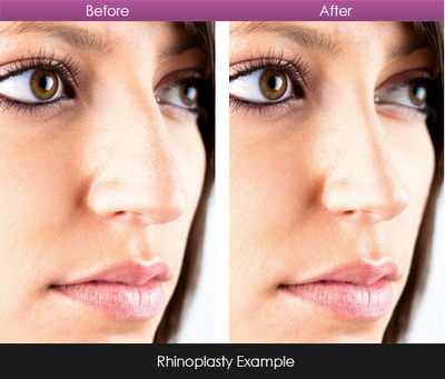 before - after rhinoplasty