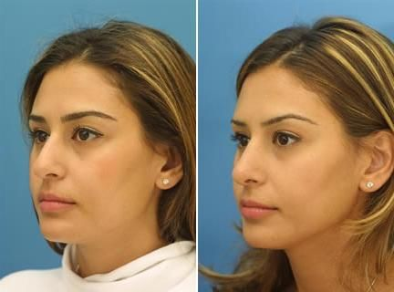 best rhinoplasty surgery