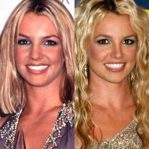 britney spears nose job