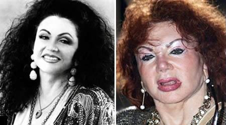 jackie stallone bad nose job