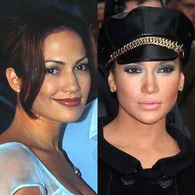 jennifer lopez nose job