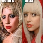 lady gaga nose job rhinoplasty