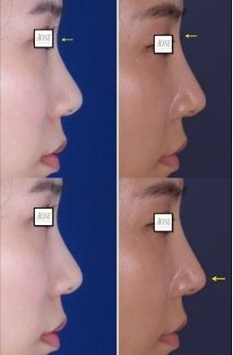 nasal peformaing used for asian nose job