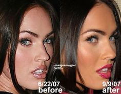 nose job before and after with a higher cost