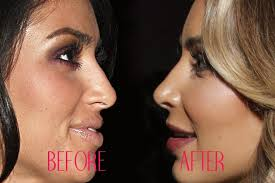 the best nose job surgeons