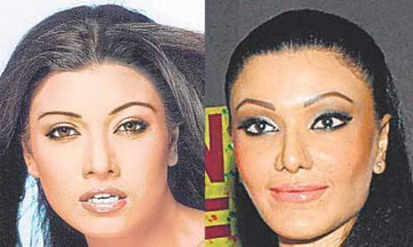 worst celebrity nose jobs koena mitra