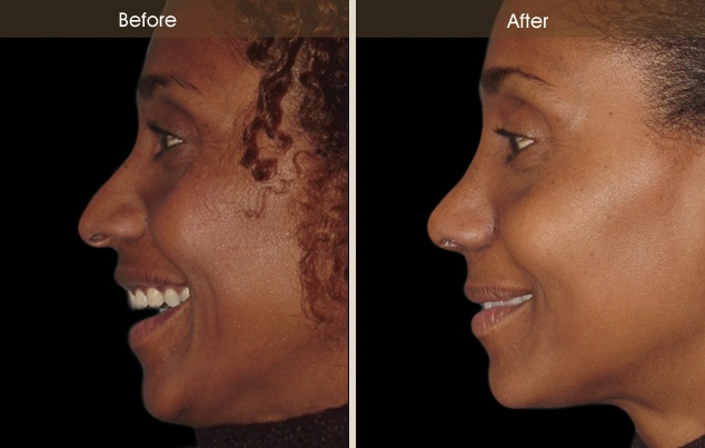 African American Nose Job before and after