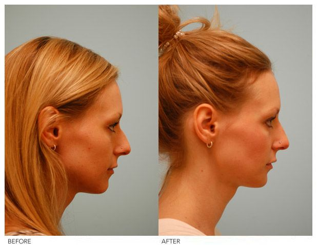 Injectable Rhinoplasty