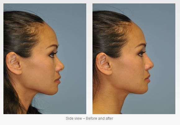 Nose Reshaping Surgery with Injectable Fillers
