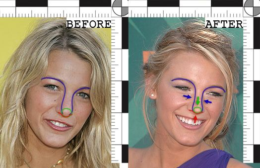 Nose plastic surgeons steps