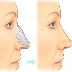 Plastic nose surgeons
