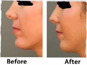 Best Rhinoplasty Surgeon practicing