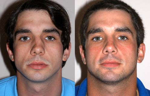 Male Nose Surgery