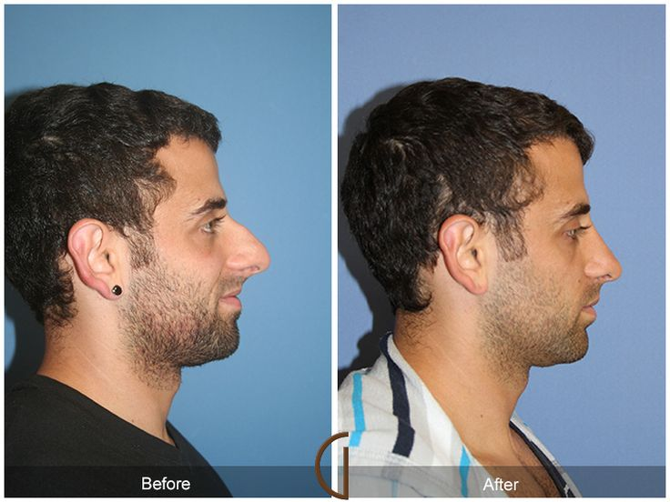 Male Rhinoplasty Nose Job