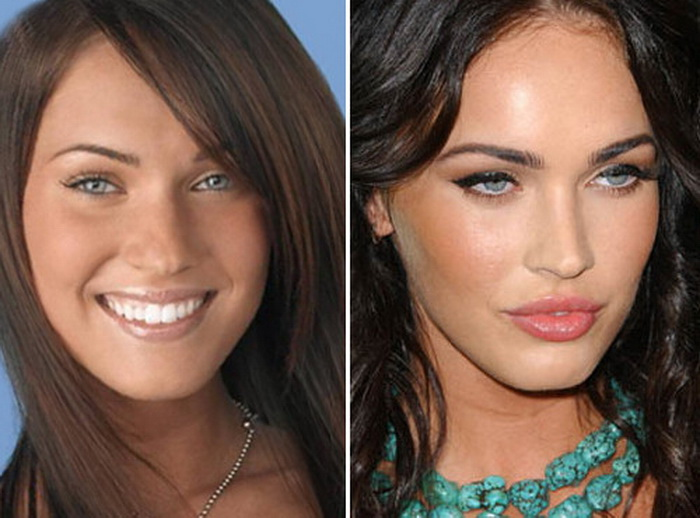 Megan Fox Top Rhinoplasty