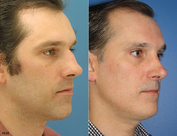 Nose job for men