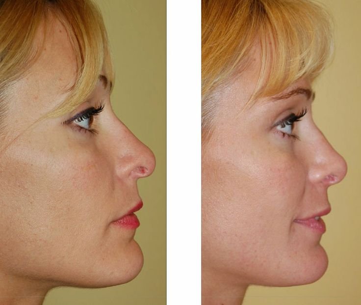 Revision Rhinoplasty - Rhinoplasty Correction Surgery