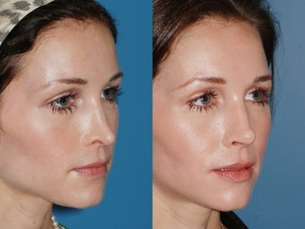 Revision rhinoplasties