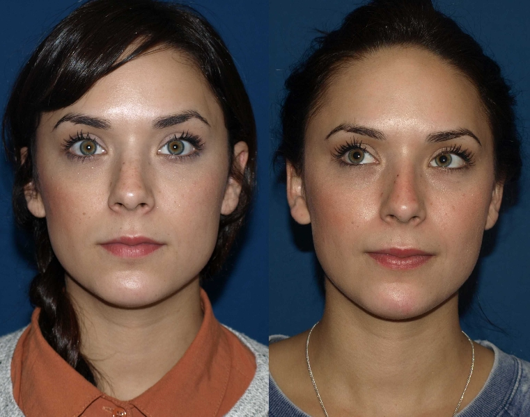 Top rhinoplasty
