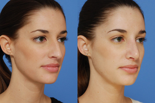 before and after nose job