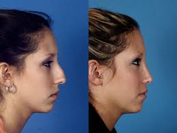 best nose surgeon