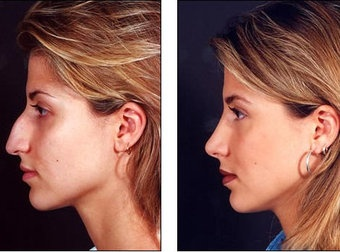 best plastic surgeons for best rhinoplasty results