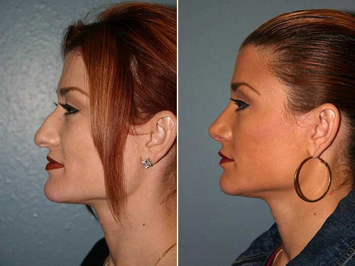 best rhinoplasty surgeon.