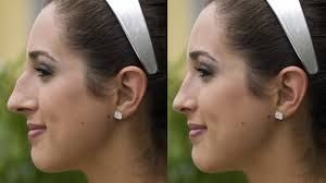 best rhinoplasty surgeons