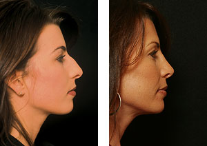 best rhinoplasty surgeon for best nose job