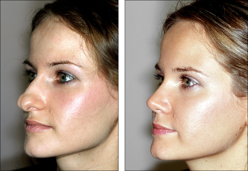 big nose rhinoplasty before and after