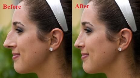 big nose rhinoplasty surgery