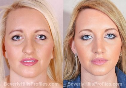 cosmetic nose surgery before and after