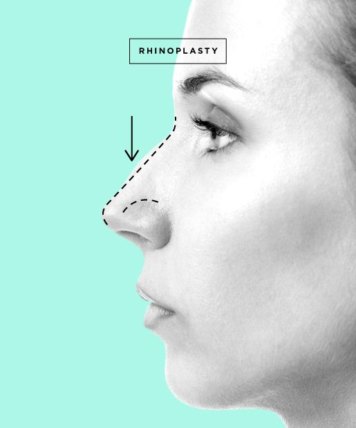cosmetic nose surgery