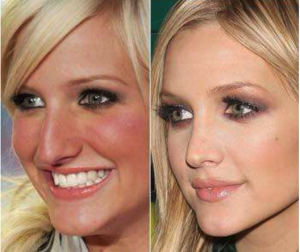 effective nose job with best surgeon