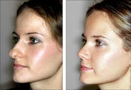 nose rhio surgery before and after