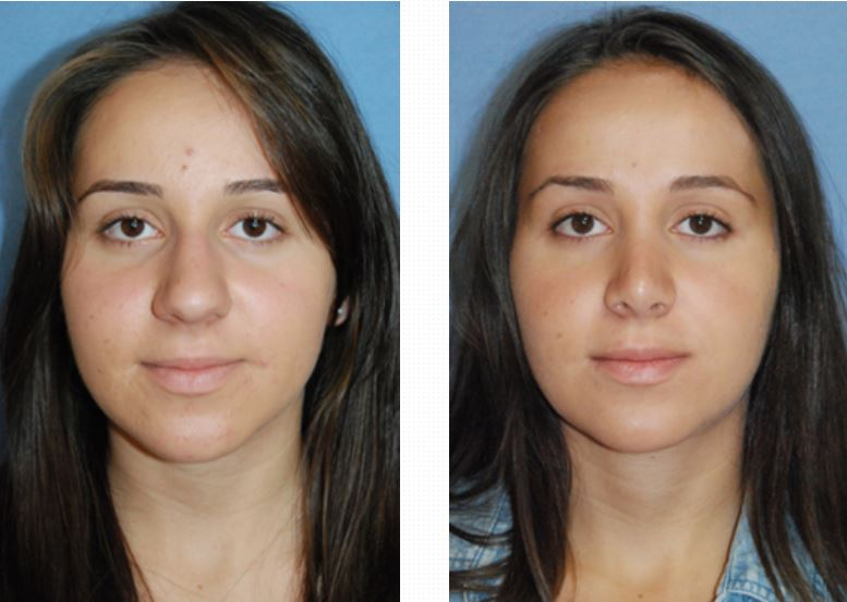 plastic surgeons rhinoplasty