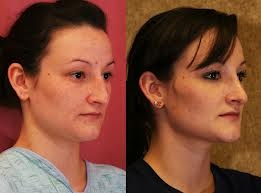rhinoplasty surgeons do reconstructive nose shaping