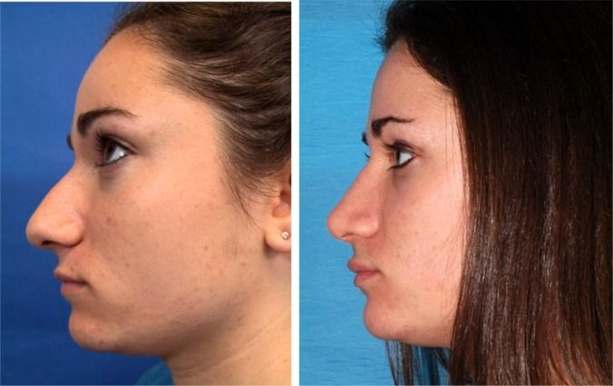rhinoplasty surgeons re shape the nose