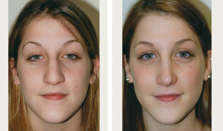 rhinoplasty surgery for big nose