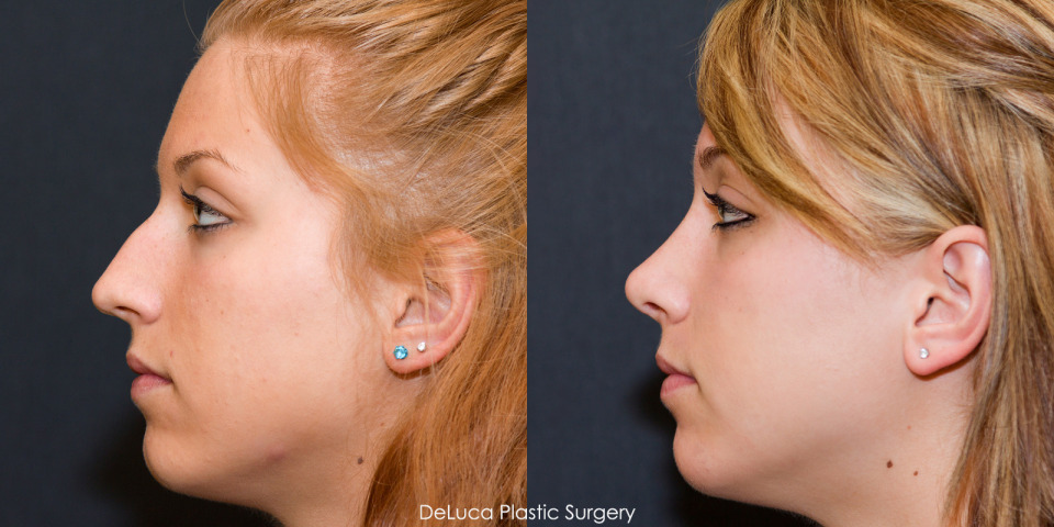 rhinoplasty surgery process