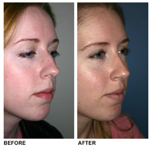 slight rhinoplasty before and after