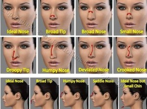 surgeons different nose job events