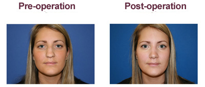 After Rhinoplasty Surgery