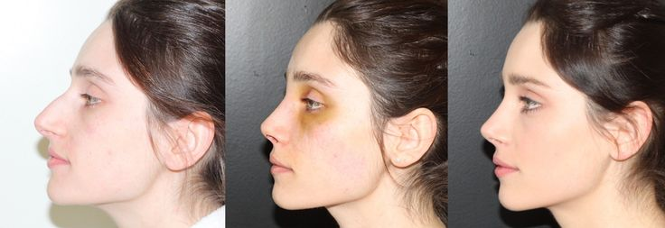 Bruises and Sweelling After Rhinoplasty
