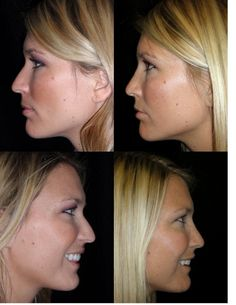 Rhinoplasty is Fix Breathing Complications
