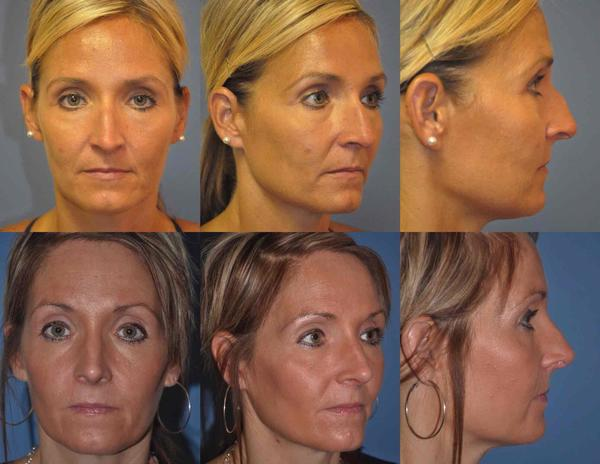 Rhinoplasty under General Anesthesia Before and After